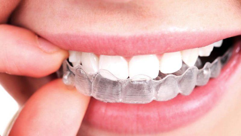 invisalign-phoenix-orthodontist